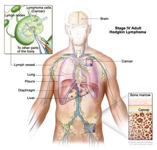 CNS Lymphoma